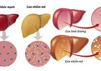 Gan nhiễm mỡ - Bệnh thời hiện đại