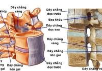 Đau tê từ bụng xuống chân coi chừng bị hẹp ống sống ngực