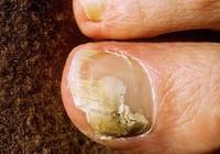 6 mẹo dễ dàng giúp trị bệnh nấm móng