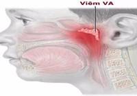 Những điều cần biết về viêm VA