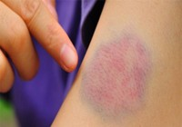Vì sao vết thương gây bầm tím kéo dài?