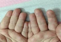 Tróc da bàn tay, bệnh gì?