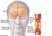 Dấu hiệu sớm thiếu máu não
