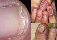 Cần kiên trì khi trị nấm móng