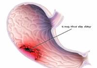 6 triệu chứng dự báo ung thư dạ dày thường bị bỏ qua