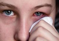 Mẹo nhỏ bỏ túi tránh viêm mắt, đỏ mắt trong mùa hè