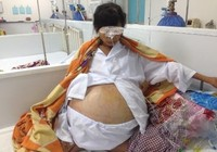 Mổ lấy khối u 12 kg trong bụng nữ bệnh nhân