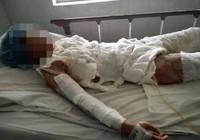 Chị Khê, nạn nhân bị chồng đốt đã tử vong