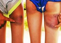 Kỷ luật cảnh cáo thầy giáo đánh 6 học sinh bầm tím