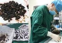 Kinh hoàng phát hiện 200 viên sỏi trong cơ thể