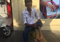 Bị què một chân, nam thanh niên vẫn mang theo ma túy