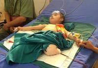 Đá đè sập nhà, bé trai 4 tuổi bị mất hai chi