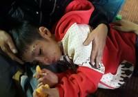 Vụ bé 10 tuổi bị bạo hành: Tạm giam cha, khởi tố mẹ kế