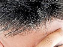 Infographic: 8 bài thuốc đơn giản chữa tóc bạc sớm