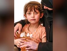 Cô bé Syria kể lại vụ tấn công nghi dùng vũ khí hóa học