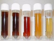 Màu sắc nước tiểu cảnh báo vấn đề sức khỏe gì?
