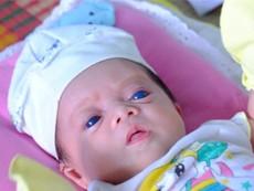 Lý giải căn bệnh kỳ lạ của 'thiên thần mắt xanh'