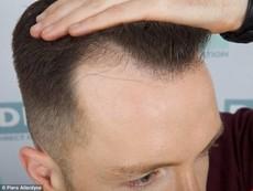 Thủ phạm gây ra chứng hói đầu