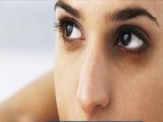 Quầng thâm ở mắt rất có thể là dấu hiệu bệnh gan, thận