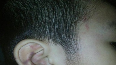 Đi học về, bé 5 tuổi sưng bầm tai nghi bị bảo mẫu đánh