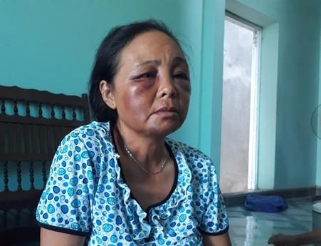 2 phụ nữ bị đánh vì nghi bắt cóc: Họ quá hung hãn!