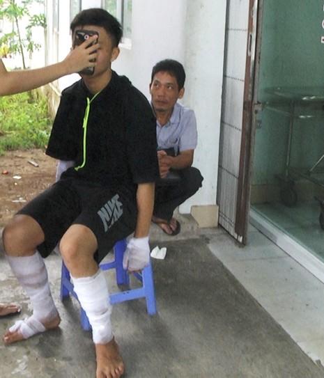 10 học sinh ở Hậu Giang bị bỏng do nổ bình gas mini - ảnh 1