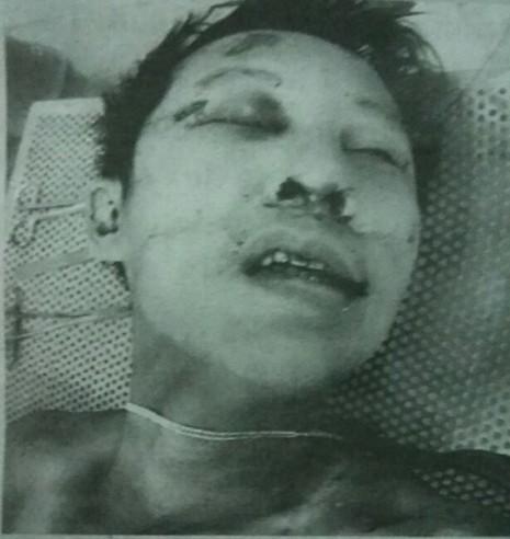 Nạn nhân mang dây chuyền bị đánh chết, khởi tố 6 người  - ảnh 2