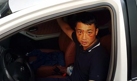 Truy bắt 2 kẻ nổ súng, chém người gần chợ Quán Lau - ảnh 1
