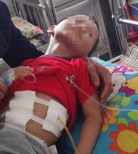 Bé trai 5 tuổi bị đánh vỡ gan, gãy xương sườn - ảnh 2