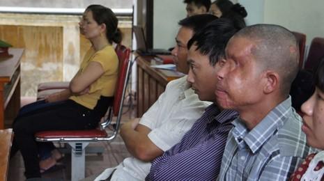 Xét xử vụ gài mìn xe khách: Thương tâm nạn nhân bị mù 2 mắt, cụt 2 tay - ảnh 4