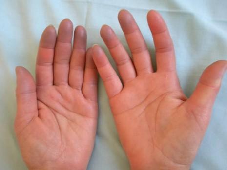 8 nguyên nhân khiến tay chân bạn lúc nào cũng lạnh - ảnh 1