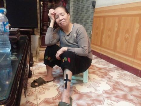 Hà Nội: Kinh hoàng 4 con chó dữ xông vào cắn chủ - ảnh 1