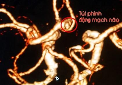Đau đầu kinh niên dễ gặp phình mạch máu não - ảnh 1