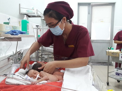 Hai bé song sinh dính liền bị viêm phổi trước ngày mổ tách - ảnh 1