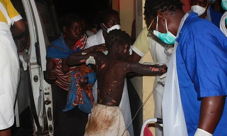 Một bé trai bị thương được đưa đến cấp cứu tại bệnh viện Tete sau vụ nổ xe bồn.