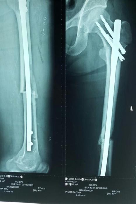 Hai chân bệnh nhân lành lặn sau khi được đóng đinh nội tủy kín