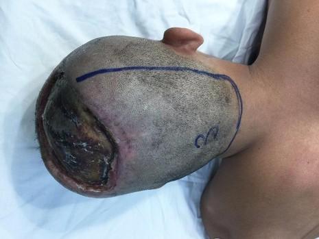 Bệnh nhân P bị mất da đầu, lộ cả xương sọ do bỏng điện.