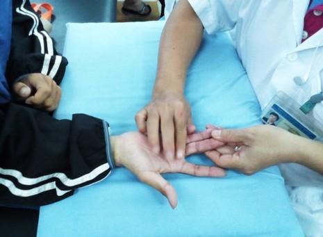 Mất khả năng cầm và nắm do bỏ trị liệu - ảnh 2