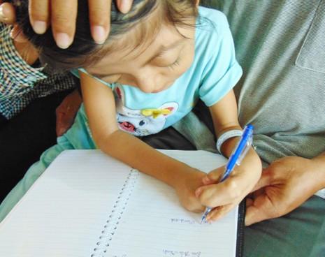 Mổ tách bàn tay 'dính chùm' cho bé gái 8 tuổi - ảnh 2