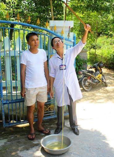 Sán sơ mít dài 12m ký sinh trong ruột người - ảnh 1