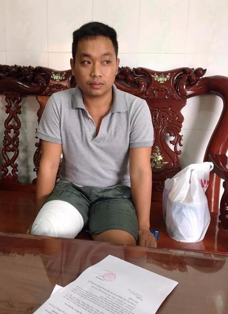 Vụ bệnh nhân bị cắt chân: Bệnh viện chỉ đồng ý hỗ trợ 150 triệu đồng - ảnh 2