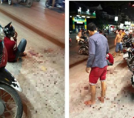 Nam thanh niên bị chém đứt lìa cánh tay đã tử vong - ảnh 1