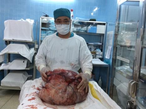 Cắt khối bướu tử cung nặng 26 kg - ảnh 1