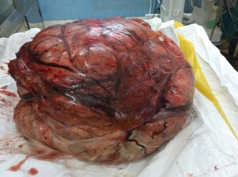 Cắt khối bướu tử cung nặng 26 kg - ảnh 3