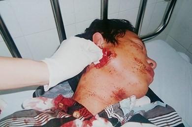 Yêu cầu báo cáo vụ công an xã bắn người bị còng tay - ảnh 1