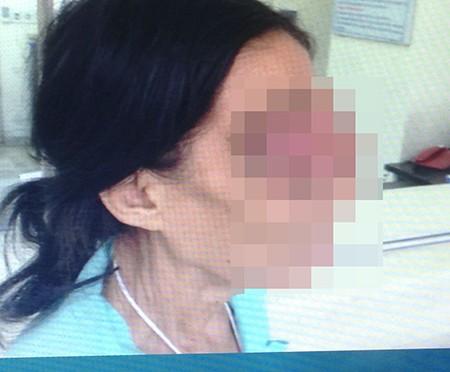Người phụ nữ không ngửi được mùi do ung thư hốc mũi - ảnh 1