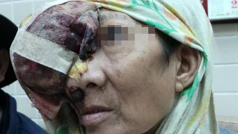 Người phụ nữ không ngửi được mùi do ung thư hốc mũi - ảnh 2