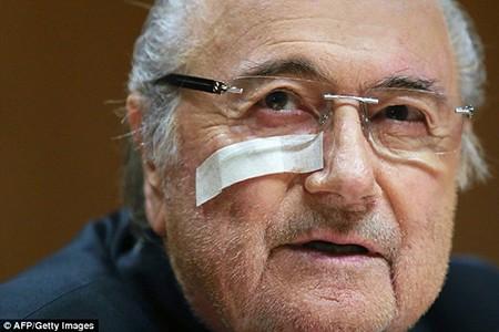 Bị cấm 8 năm, Blatter xin lỗi 8 lần trong 1 phút - ảnh 1