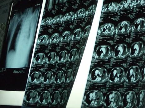 Đoạn 25 cm động mạch chủ ngực bệnh nhân phình to suýt vỡ