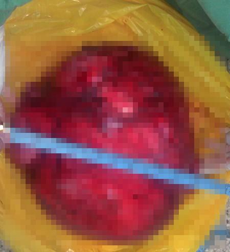 BV Nhân dân Gia Định phẫu thuật lấy khối u xơ tử cung 12,5 kg - ảnh 1